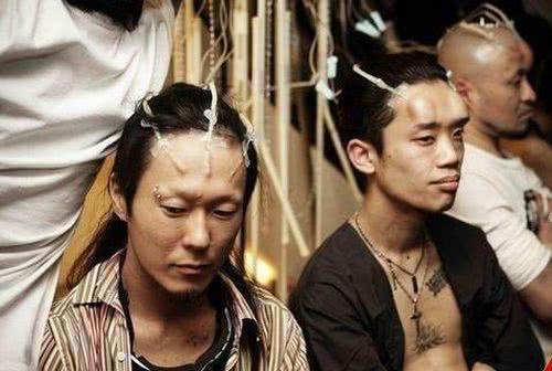 日本青年流行贝果头:往额头注盐水造肿块